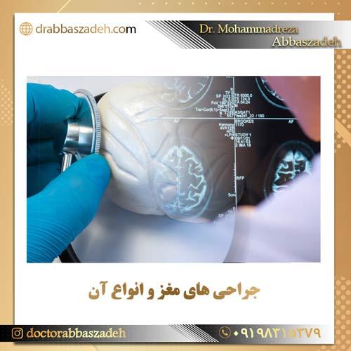انواع جراحی های مغز