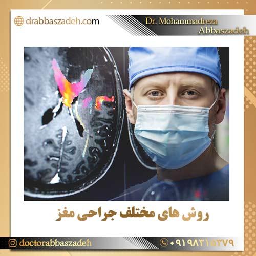 روش های مختلف جراحی مغز