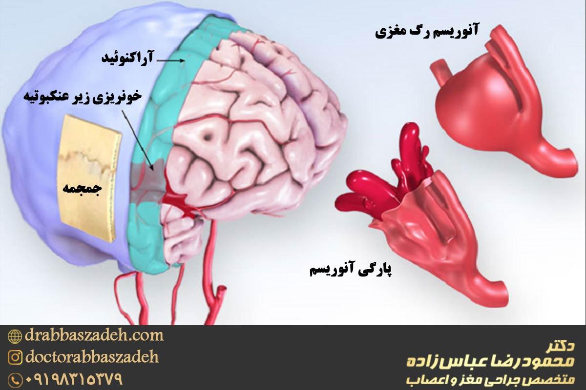 بیماری آنویسم مغزی