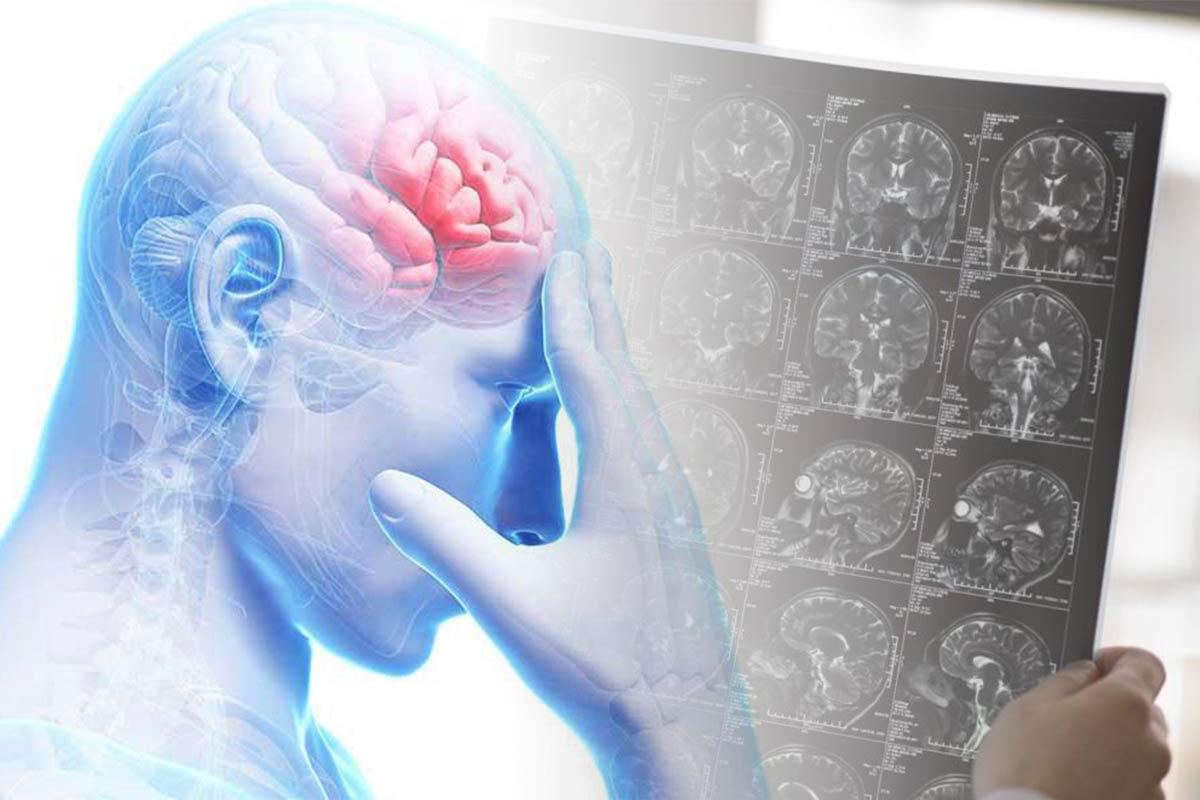 عمل جراحی تومور مغزی