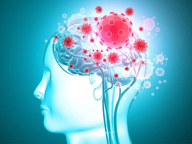 نقش کرونا در بیماری های مغزی