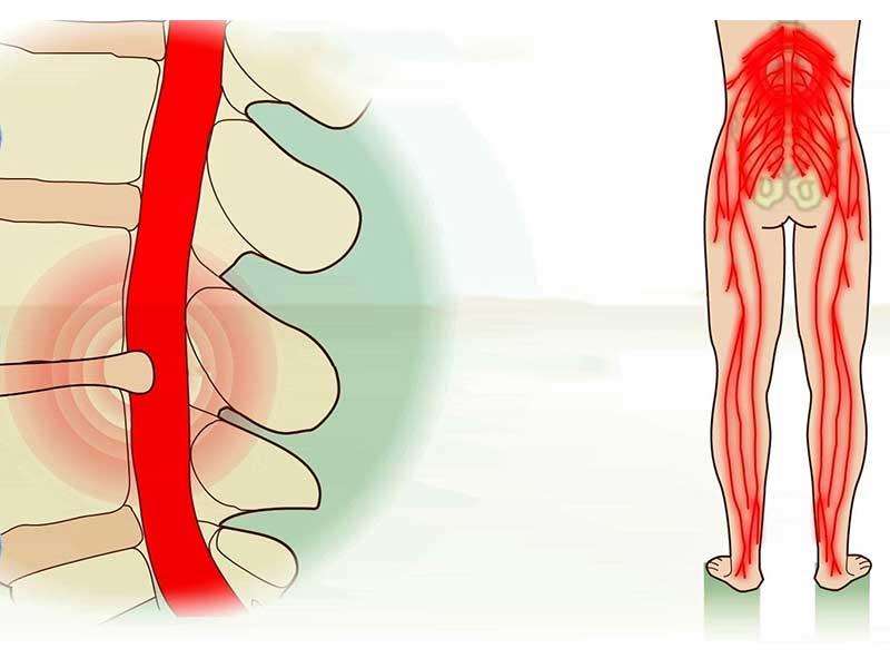 علائم دیسک کمر در پاها را بشناسید