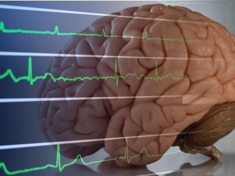 مرگ مغزی و همه چیز درباره آن