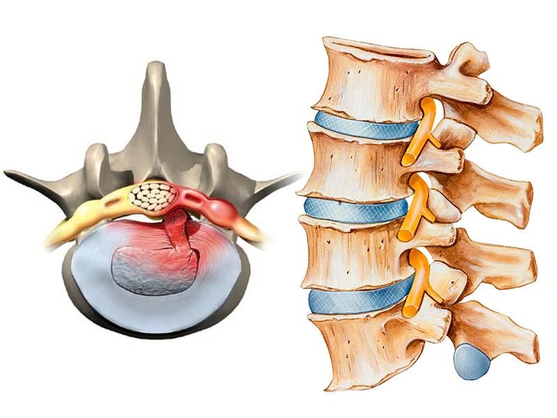 درمان دیسک کمر بدون جراحی، با کمترین عوارض