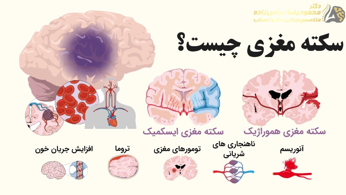 سکته مغزی چیست
