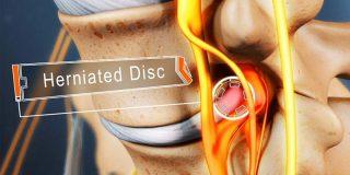 خطرناکترین نوع دیسک کمر